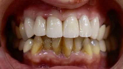 Eksik diş tedavisinde zirkonyum diş kaplama ve implant